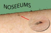 noseeums.Ceratopogonidae.-NO-Seeums-300x1941